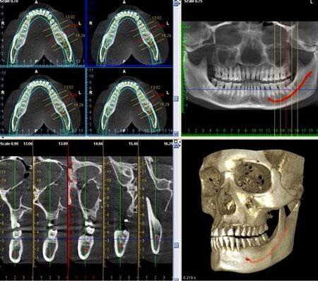 Вебинар «Возможности использования КЛКТ при лечении деструктивных апикальных процессов. Интерактив с компанией Vatech» - Портал стоматологического постдипломного образования EDU-STOM.RU
